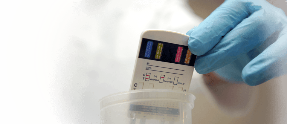 rapid vs lab urine testing